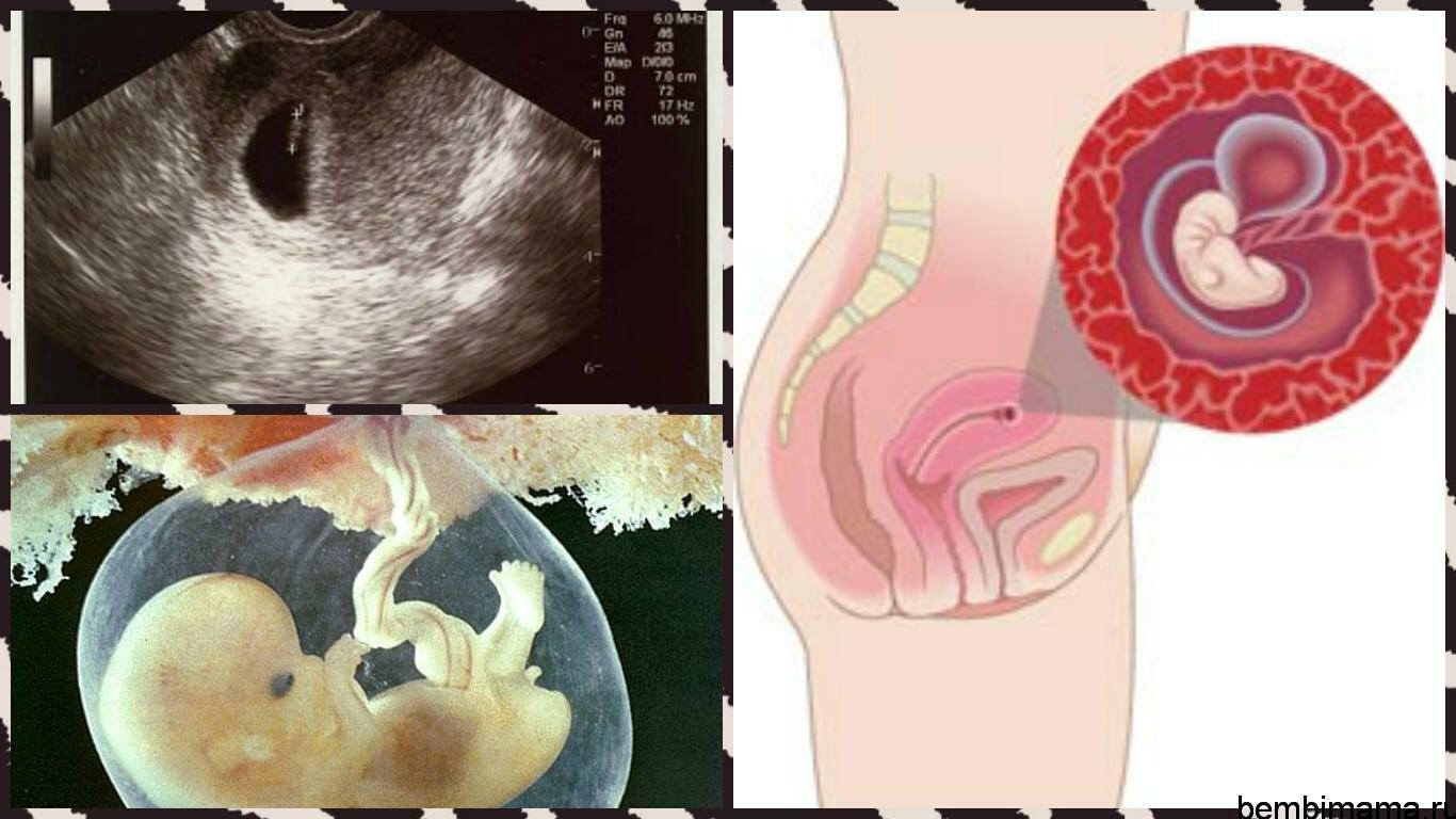 Календарь беременности шестая неделя