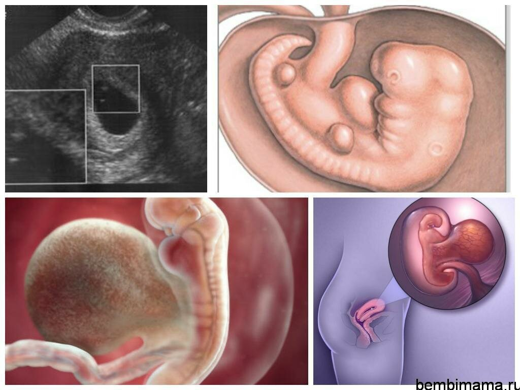 Календарь беременности пятая неделя