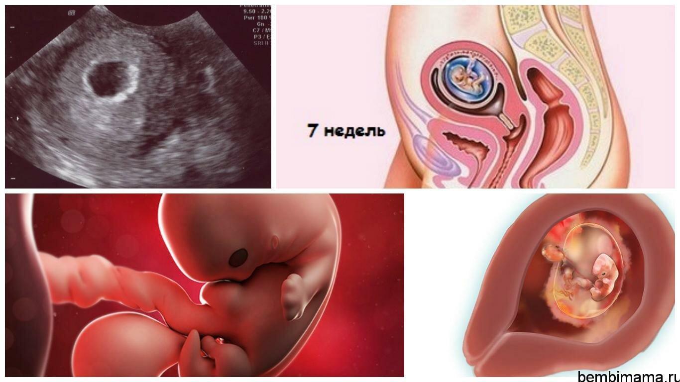 Фото ребенка на седьмой неделе беременности