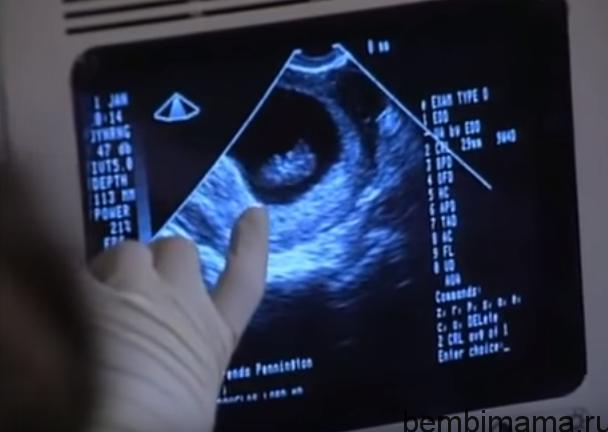 Календарь беременности девять недель